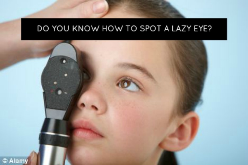 Do You Know How To Spot A Lazy Eye?
