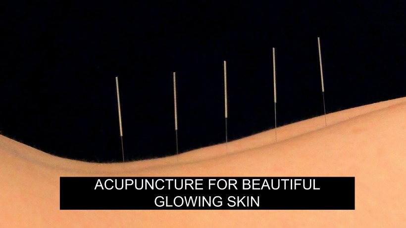 Acupuncture for Beautiful Glowing Skin